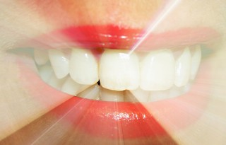 How Do Whitening Toothpastes Work General And Cosmetic Dentist